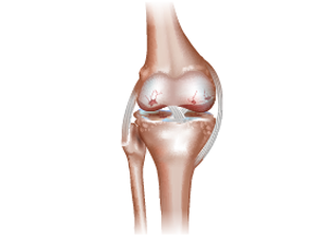 WHAT IS OSTEOARTHRITIS ?